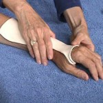 Beginner Hand Orthotic Fabrication