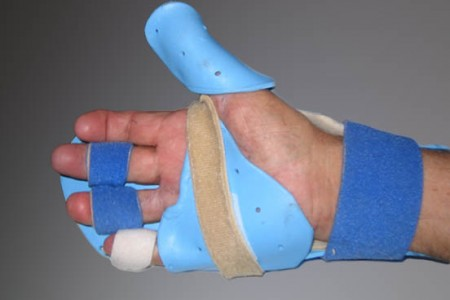 Private Orthosis (Splinting) Fabrication Tutorial